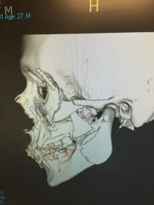 X-ray of Alex Cintron's jaw following his 2014 spill.